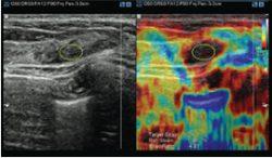 ElastoScan™ E-Breast™