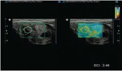 ElastoScan™ E-Thyroid™